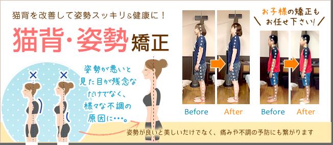 猫背を改善して姿勢スッキリ健康に!猫背・姿勢矯正